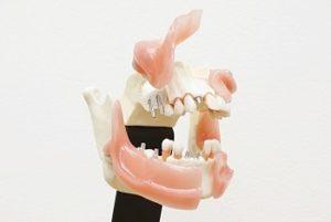 歯と歯のバランスを考えて治療します<