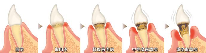 歯周病の流れ